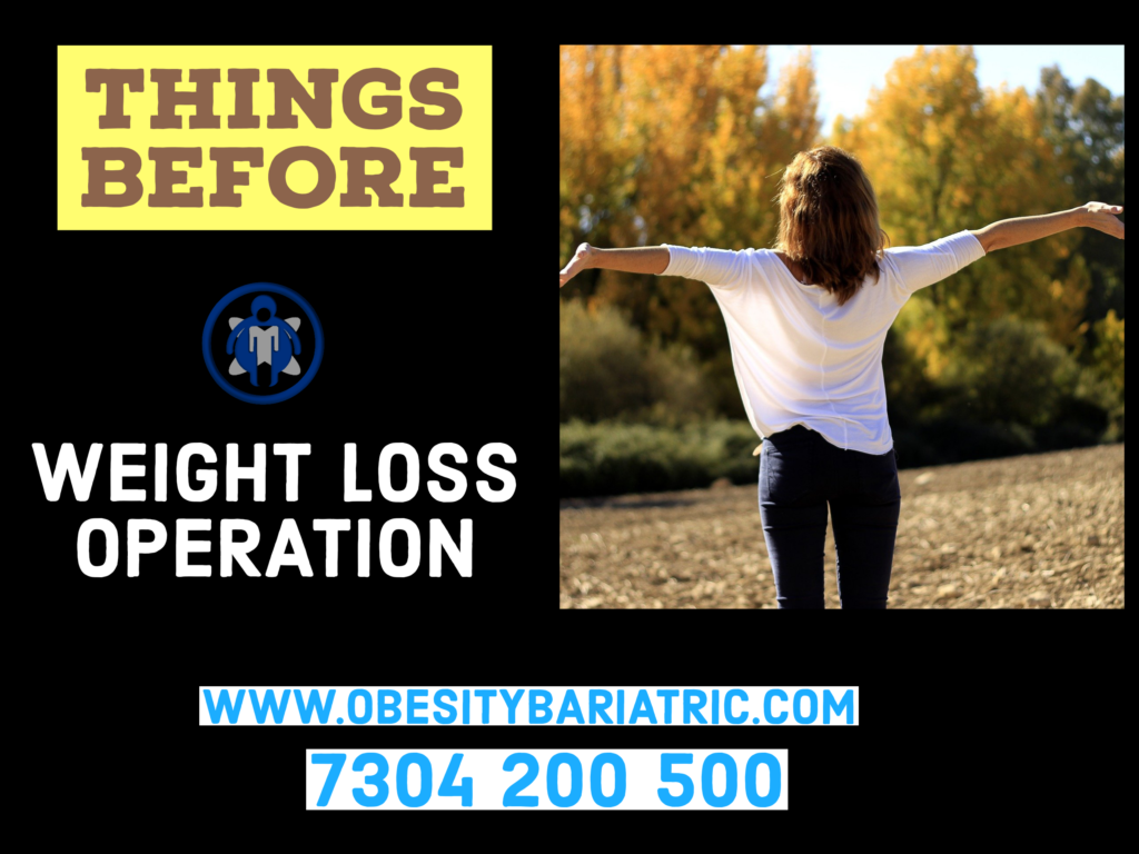 weight loss operation